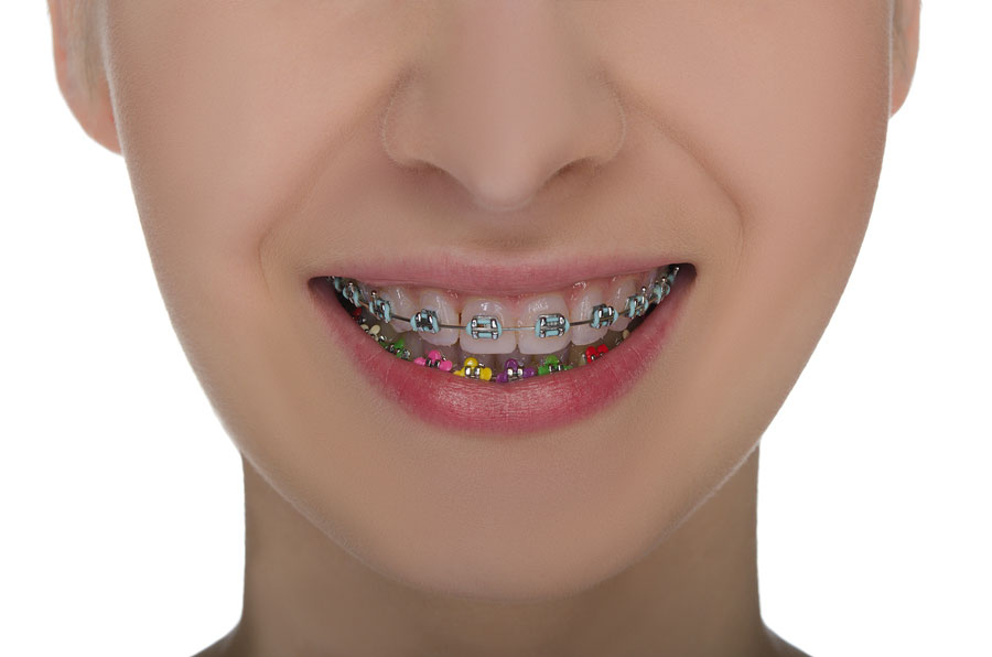 braces-color-picker