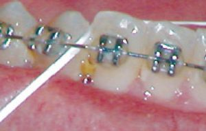 food-caught-between-teeth