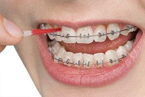 interdental-toothbrush
