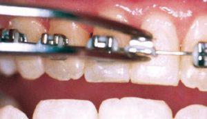 loose-bracket-or-band