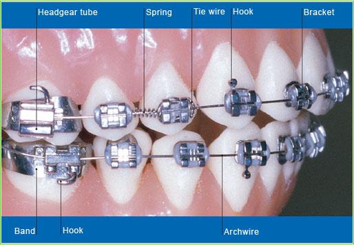 parts-of-braces-1
