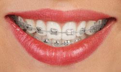type-of-braces-1