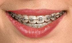 type-of-braces-2