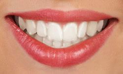 type-of-braces-4