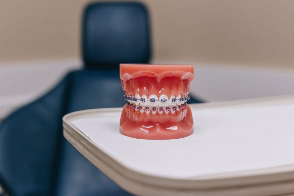 orthodontist nj reviews