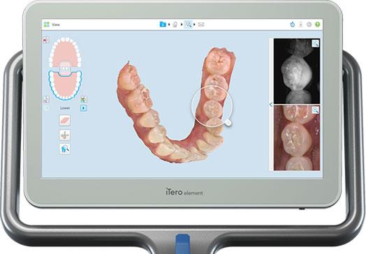 iTero orthodontist NJ